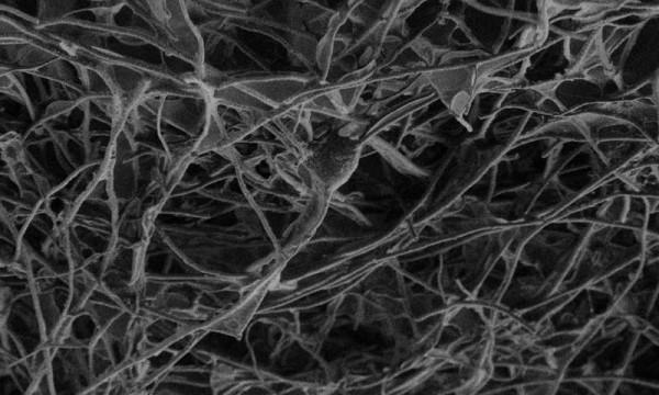 Sinir Dokuları Arasında Karbon Bir Köprü