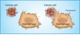 İmmün Hücrelerin Kansere Saldırması Demir Nanopartikülleriyle Gerçekleşiyor